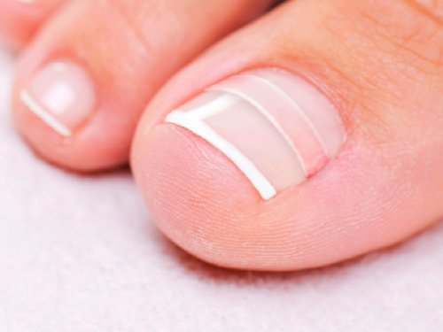 CurveCorrect Ingrown Toenail Home Treatment | Ingrown toenail Correction kit, Includes Ten Standard toenail...