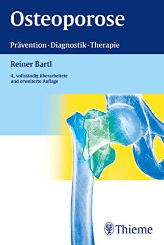 Osteoporose: Prävention, Diagnostik, Therapie