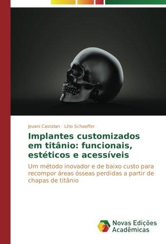 Castelan, J: Implantes customizados em titânio: funcionais,