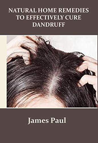 NATURAL HOME REMEDIES TO EFFECTIVELY CURE DANDRUFF (English Edition)