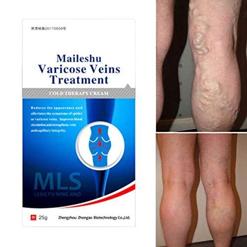 Varicose Veins Cream, Varicose Vein & Soothing Leg Cream, Natural Varicose & Spider Veins Treatment, Strengthen Capillary Health, Improve Blood Circulation, Tired and Heavy Legs