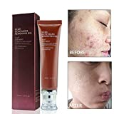 Ofanyia Scar Acne Mark Removing Gel Anti Acne Scar Mark Remover Moisturizing Firming Skin Scar Removal Cream