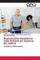 Bupivacaína hipobárica más fentanil en fractura de cadera: Anestesia y Reanimación