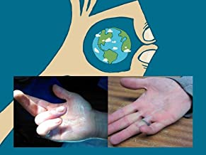 Wake Up To Hand Surgery- A Patients Guide To Wide Awake Hand Surgery (Wide Awake Hand Surgery Patient Series Book 1)