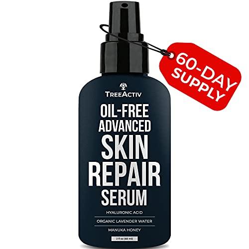 TreeActiv Oil-Free Advanced Skin Repair Serum | Hyaluronic Acid | Anti-Wrinkle | Anti Aging | Scar Gel | Revitalize Face and Skin | Collagen Booster | Healthy Natural Moisturizer | 2 fl oz.