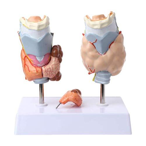 LNDDP Anatomical Model Of Human thyroid pathology - The throat thyroid Thyroid cyst tumor model, the human anatomy model Medical Teaching Aids