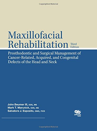 Maxillofacial Rehabilitation: Prosthodontic and Surgical Management of Cancer-Related, Acquired, and