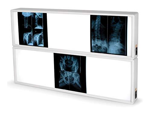 Negativoscopio GIMA 76x122 cm per lettura lastre radiografiche. Lampada a fluorescenza