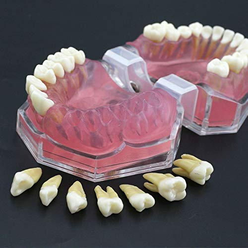 Complete Dental Teeth Model with 28Pcs Removable Teeth and Soft Gum Standard Typodont for Medical Science Dental Disease Teaching Study