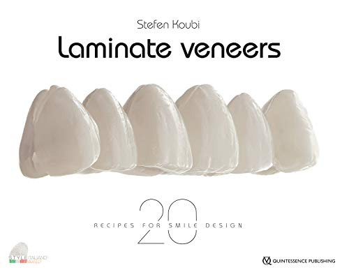 Laminate Veneers: 20 Recipes for Smile Design