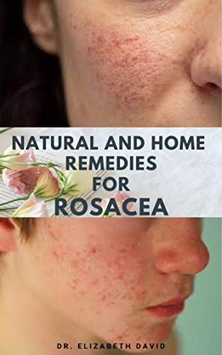 NATURAL AND HOME REMEDIES FOR ROSACEA: A Self Help Guide To Completely Prevent and Treat Rosacea (English Edition)