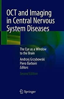 OCT and Imaging in Central Nervous System Diseases: The Eye as a Window to the Brain