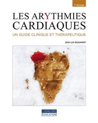 Les arythmies cardiaques : Un guide clinique et thérapeutique