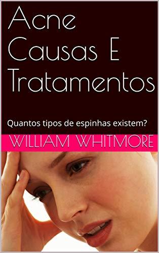Acne Causas E Tratamentos: Quantos tipos de espinhas existem? (Portuguese Edition)