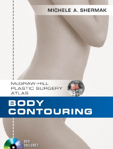 Body Contouring (McGraw-Hill Plastic Surgery Atlas) (English Edition)