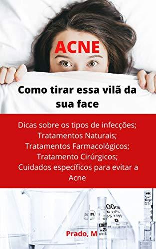 ACNE: Tire essa Vilã da sua Face (Portuguese Edition)