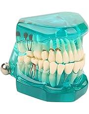 Akozon Modelo dental de la enseñanza Modelo de dientes los dientes del adulto del dentista del modelo del cuidado dental, Desmontable(Verde)