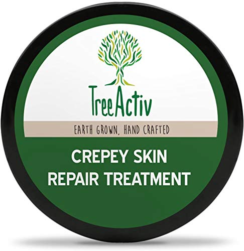 TreeActiv Crepey Skin Repair Treatment 8 fl oz, Anti-Aging, Anti-Wrinkle, Organic Ingredients for Face, Neck, Chest, Legs & Arms, Hyaluronic Acid, Alpha Hydroxy Fruit Acids, Honey, Shea
