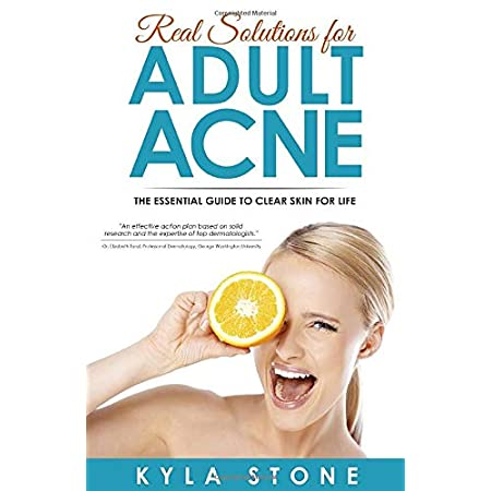 Acne treatment products Real Solutions for Adult Acne: Cure Hormonal Acne with Science-Backed Treatments that Work