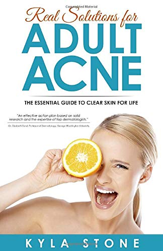 Acne treatment products Real Solutions for Adult Acne: Cure Hormonal Acne with Science-Backed Treatments