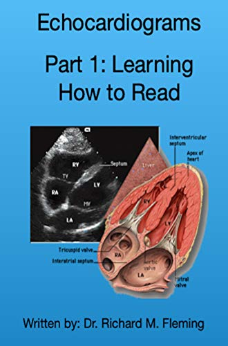 Echocardiograms - Part 1: Understanding the Basics. (English Edition)