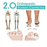 Orthopedic Bunion Corrector 2.0 et protecteurs de soulagement de Bunion, séparateurs...