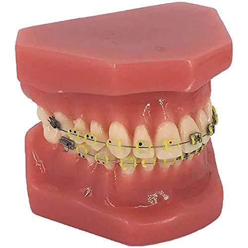 MKULOUS Zahnmodell - Berufslehrmittel Zahnmedizinische Studienmodell, Kieferorthopädisches Modell Als Lernmodell Oder Forschungswerkzeug