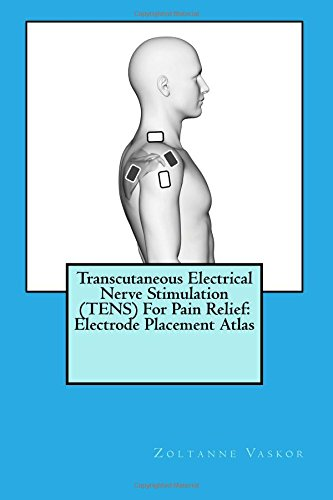 Transcutaneous Electrical Nerve Stimulation (TENS) For Pain Relief: Electrode Placement Atlas