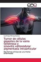 Tumor de células gigantes de la vaina tendinosa y sinovitis vellonodular pigmentada intraarticular
