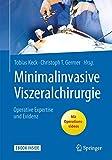Minimalinvasive Viszeralchirurgie: Operative Expertise und Evidenz - Tobias Keck