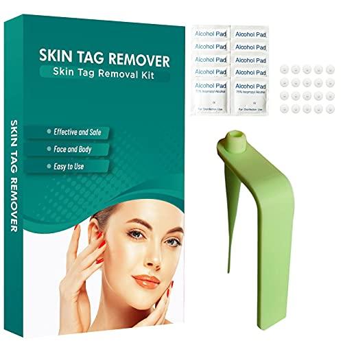 Dispositivo de limpieza de topos, kit de herramientas para limpiar las etiquetas de piel, eficaz caja fuerte, kit de productos de eliminación de acrocadores para el rostro, el cuello y el cuerpo