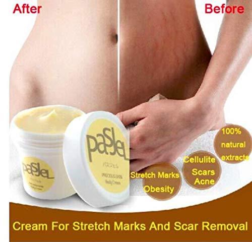 Suukee Pasjel Cream, Thaïlande PASJEL Vergetures réparatrices, crème et cicatrice, enlèvement des cicatrices, post-partum, crème réparatrice pour le corps de la peau de la maternité 50g