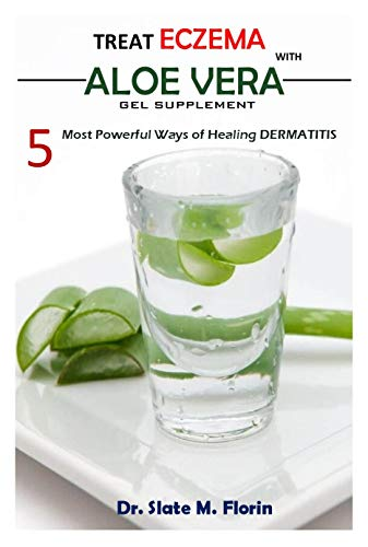 Treat Eczema With Aloe Vera Gel Supplement: 5 most powerful ways of Healing Dermatitis (English Edition)