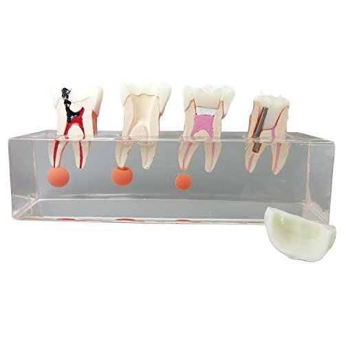 Dental Teeth Model 4-Stage Endodontic Treatment Model for Studying and Teaching …