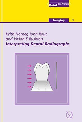 Interpreting Dental Radiographs (QuintEssentials of Dental Practice Book 5) (English Edition)