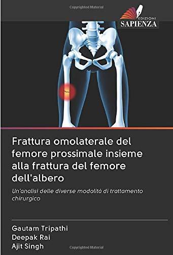 Frattura omolaterale del femore prossimale insieme alla frattura del femore dell'albero: Un'analisi delle diverse modalità di trattamento chirurgico