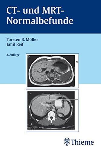 CT und MRT Normalbefunde