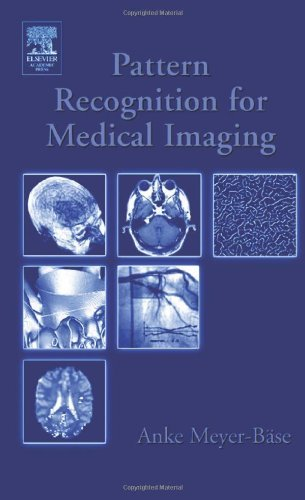 Pattern Recognition and Signal Analysis in Medical Imaging (English Edition)