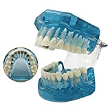 RTYUIO Modelo de ortodoncia: Modelo de Soporte Lingual intraoral Dental, Tratamiento de corrección sigiloso con Soporte de Metal, Estudio de maloclusión para la enseñanza
