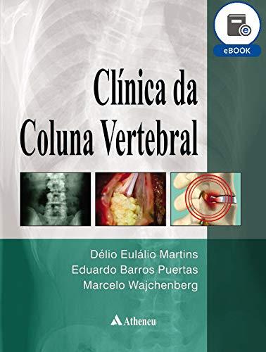 Clínica da Coluna Vertebral (eBook) (Portuguese Edition)