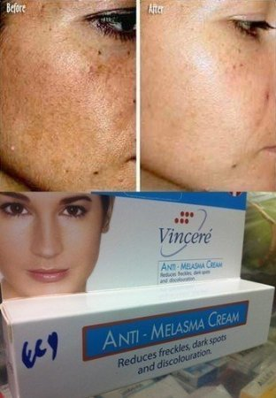 Best Cream Anti Melasma Reduces Freckles, Dark Spots and Discolouration 15 G.