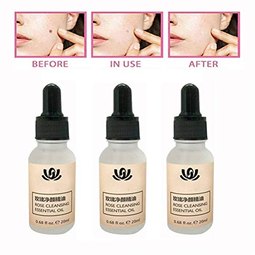 LYPXX Organic Tags Solutions Serum, Mole and Skin Tag Remover, Indolore Mole Skin Dark Spot Repair Face Wart Tag Cream Speckle Repair Cream Oil Solution (3 pcs)