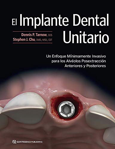 El Implante Dental Unitario