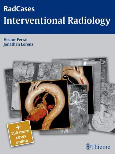 Interventional Radiology: RadCases