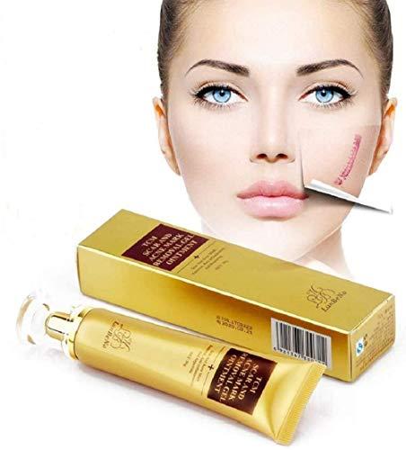 2 botellas de crema para eliminar cicatrices juveniles Crema para eliminar cicatrices de acné Crema para reparar manchas de piel NUEVO