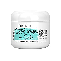 5 Best Creams For Stretch Marks 2017 You Should Try