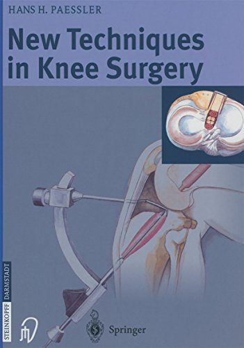 New Techniques in Knee Surgery (English Edition)