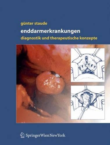 Enddarmerkrankungen: Diagnostik und therapeutische Konzepte