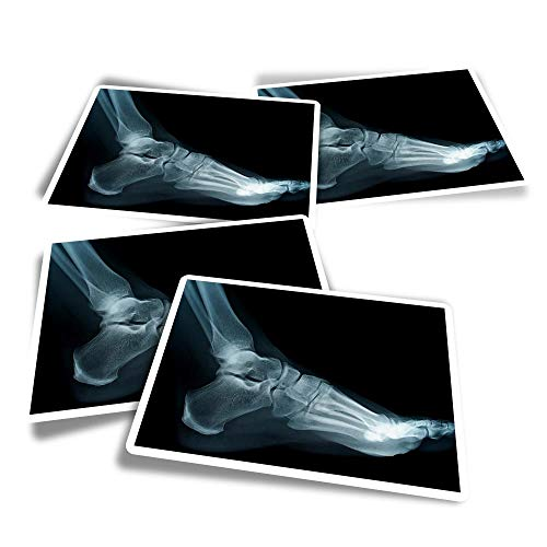 Vinyl Rectangle Stickers (Set of 4) - Human Foot Ankle X-Ray Doctor Fun Decals for Laptops,Tablets,Luggage,Scrap Booking,Fridges #21707