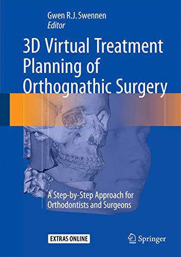 3D Virtual Treatment Planning of Orthognathic Surgery: A Step-by-Step Approach for Orthodontists and Surgeons
